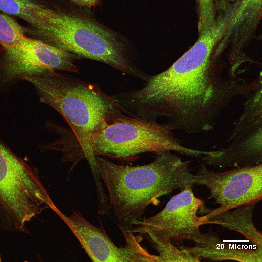UCMSC Stem Cells