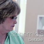 Stroke-Debbie-Zagone