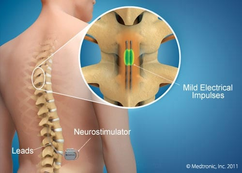 Stimulation Epidurale